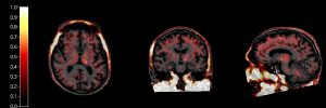 Parkinsons PET scan_inflammation - Caroline Williams-Gray